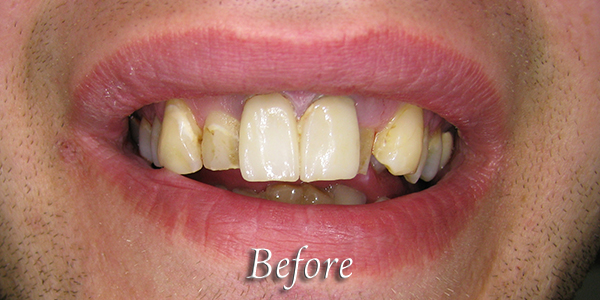 Before Cosmetic Dental Procedure 1