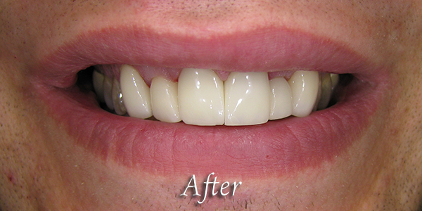 After Cosmetic Dental Procedure 1