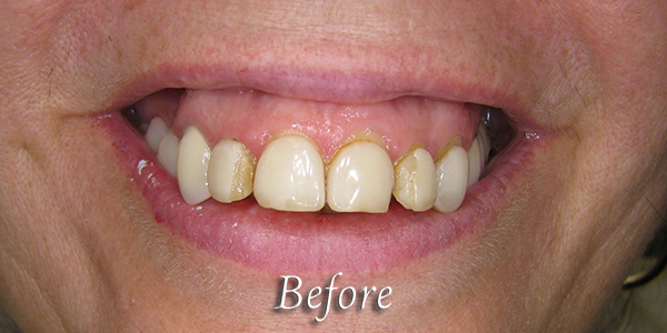 Before Cosmetic Dental Procedure 2