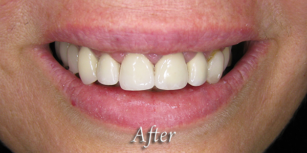 After Cosmetic Dental Procedure 2