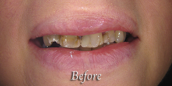 Before Cosmetic Dental Procedure 3