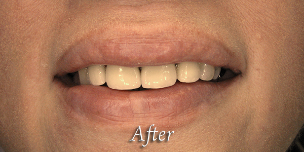 After Cosmetic Dental Procedure 3